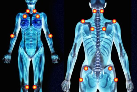 Fibromyalgia is marked by a number of tender points on the body. (Image: BodyQuirks Wellness & WBV Studio)